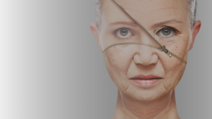 Ati-Ageing-Treatments botox