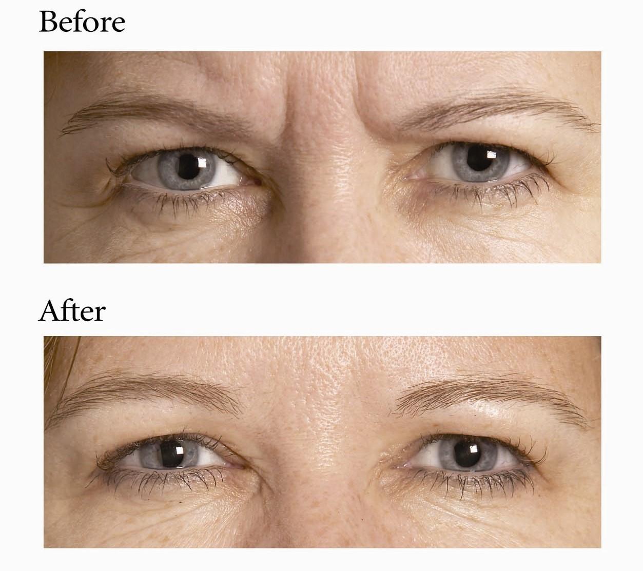 Anti Ageing Botox Treatments