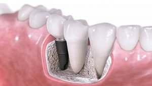 Rock Dental Implants