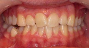 Rock Dental Braces