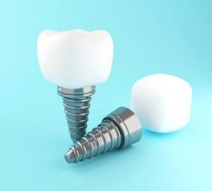 Dental tooth implant at Rock House Dental Practice. Dental Implants Wolverhampton
