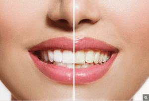 Whitening Teeth before and after