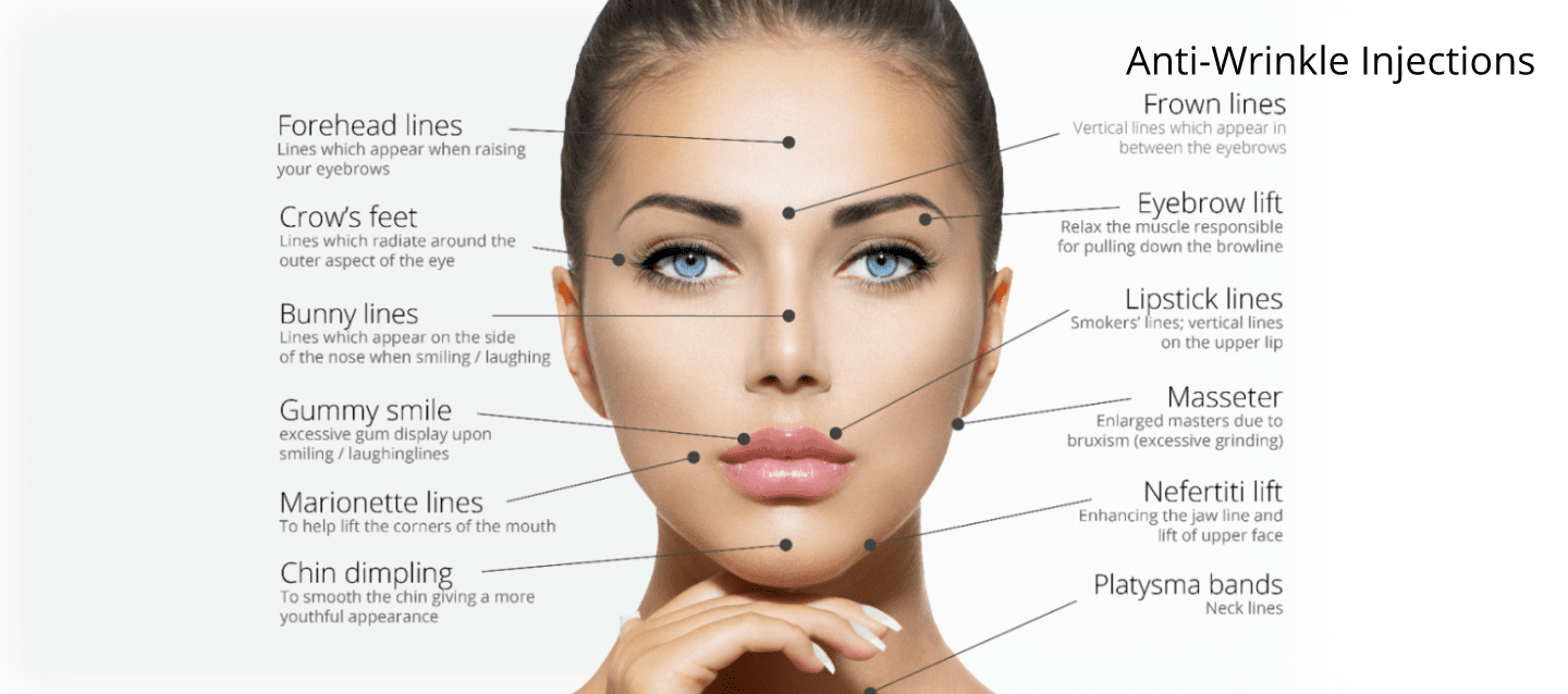 Infographic of Anti Wrinkle and Botox Injection Sites