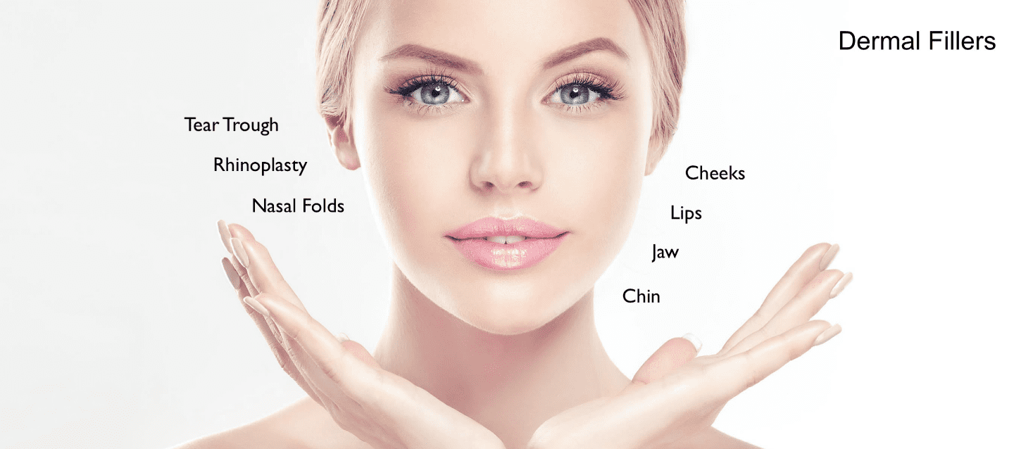 Infographic of Dermal Filler Sites