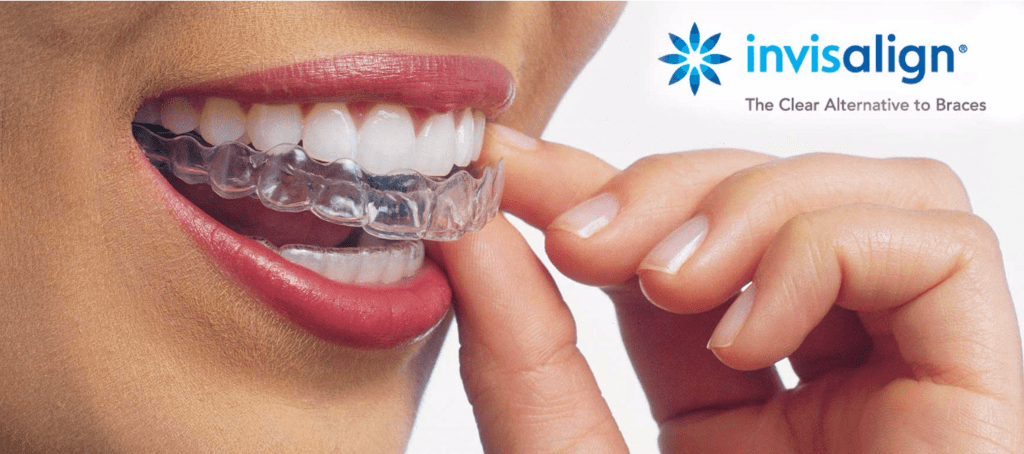 Invisalign Braces on grey background