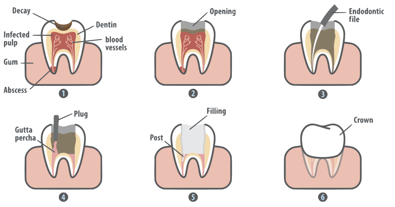 Infographic showing root canal treatment process Dentist Wolverhampton