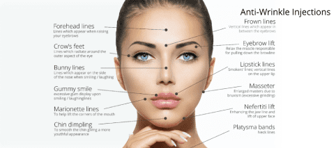 Botox anti-wrinkle treatment areas Wolverhampton