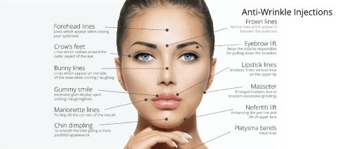 Botox anti-wrinkle treatment areas Wolverhampton