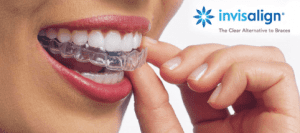 Invisalign Invisible Braces Wolverhampton