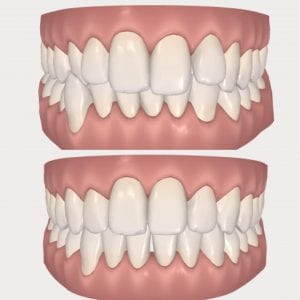 Invisalign ClinCheck Before After