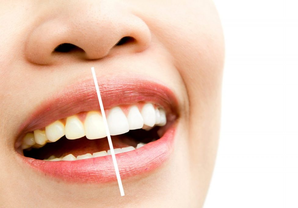 Is teeth whitening safe. Before and after.